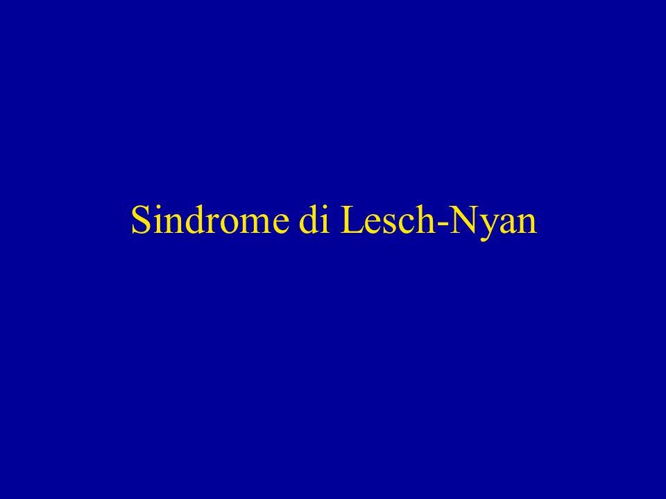 Sindrome di Lesch-Nyan