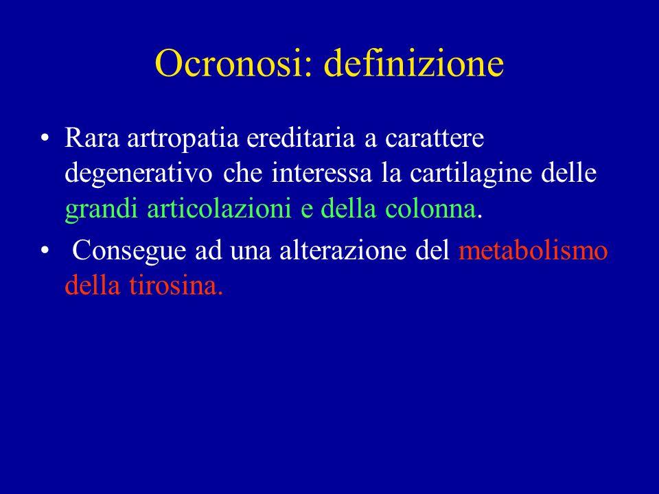 Ocronosi: definizione Rara artropatia ereditaria a carattere degenerativo che interessa la cartilagine delle grandi articolazioni e della colonna. Con