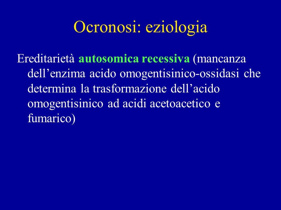 Ocronosi: eziologia Ereditarietà autosomica recessiva (mancanza dellenzima acido omogentisinico-ossidasi che determina la trasformazione dellacido omo