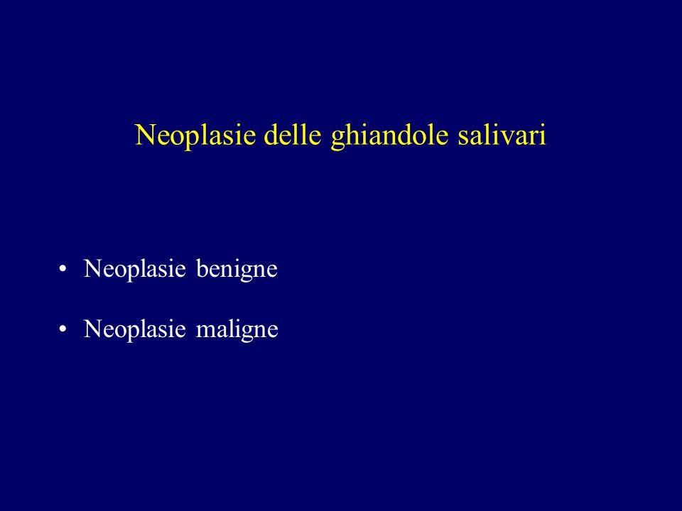 Neoplasie delle ghiandole salivari Neoplasie benigne Neoplasie maligne