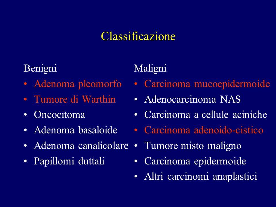 Classificazione Benigni Adenoma pleomorfo Tumore di Warthin Oncocitoma Adenoma basaloide Adenoma canalicolare Papillomi duttali Maligni Carcinoma muco