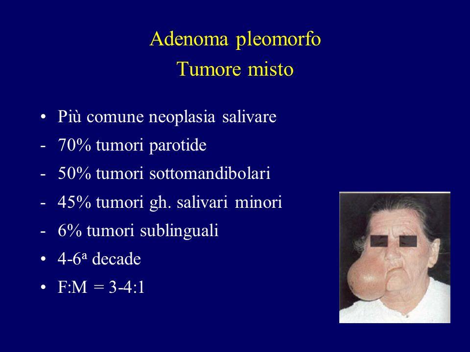 Adenoma pleomorfo Tumore misto Più comune neoplasia salivare -70% tumori parotide -50% tumori sottomandibolari -45% tumori gh. salivari minori -6% tum