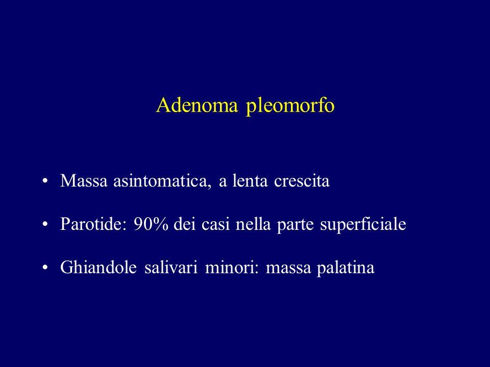 Adenoma pleomorfo Massa asintomatica, a lenta crescita Parotide: 90% dei casi nella parte superficiale Ghiandole salivari minori: massa palatina