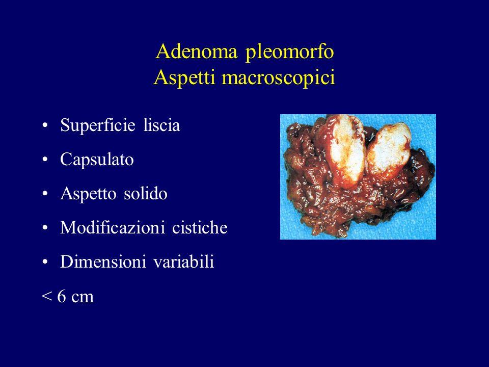 Adenoma pleomorfo Aspetti macroscopici Superficie liscia Capsulato Aspetto solido Modificazioni cistiche Dimensioni variabili < 6 cm