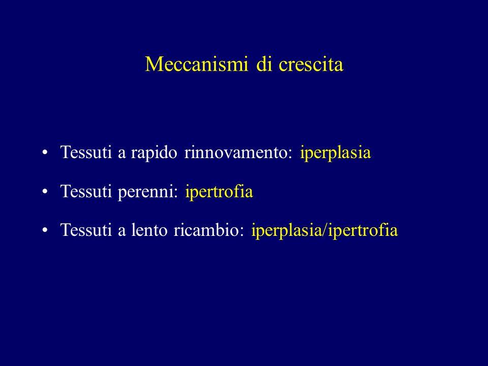 Carcinoma mucoepidermoide Aspetti macroscopici Ben circoscritto, non capsulato Tumore solido con spazi cistici a contenuto mucoide