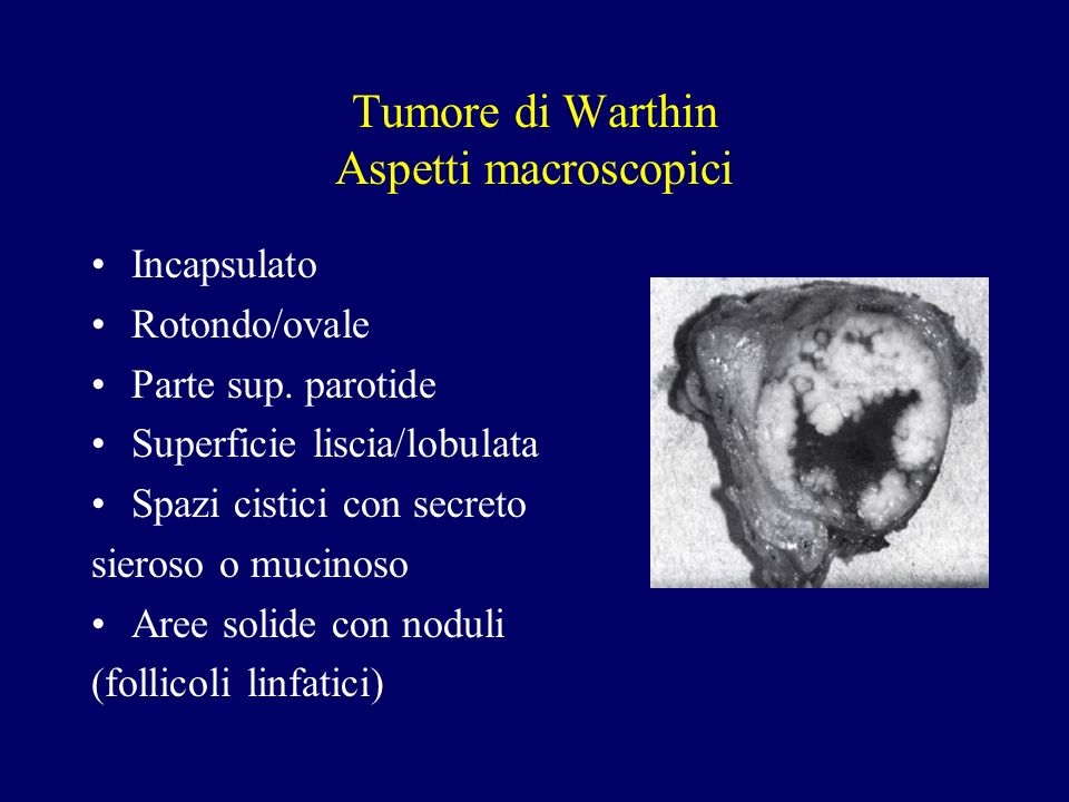 Tumore di Warthin Aspetti macroscopici Incapsulato Rotondo/ovale Parte sup. parotide Superficie liscia/lobulata Spazi cistici con secreto sieroso o mu