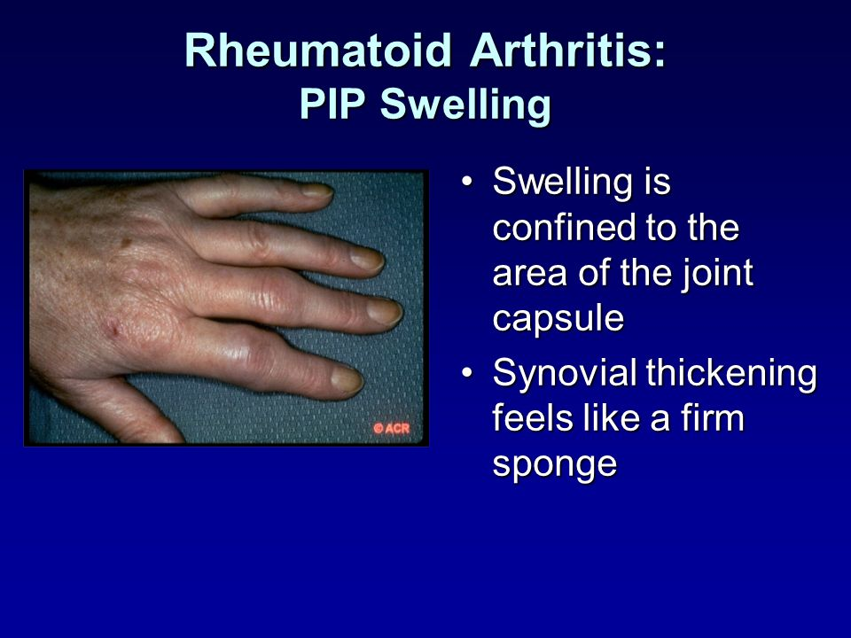Rheumatoid Arthritis: PIP Swelling Swelling is confined to the area of the joint capsuleSwelling is confined to the area of the joint capsule Synovial