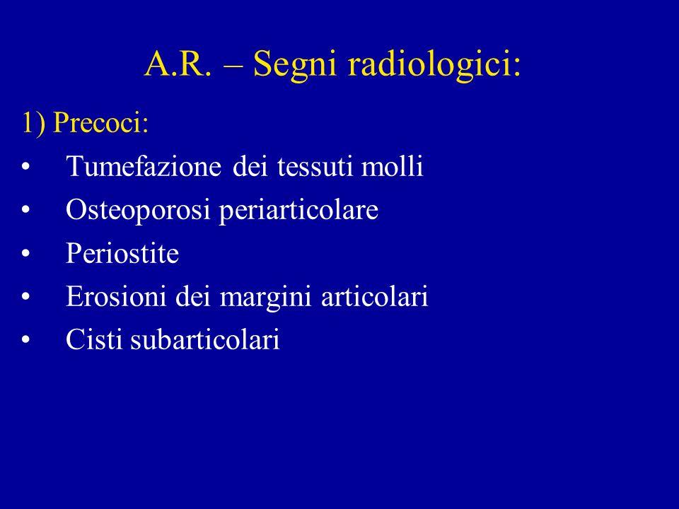 A.R. – Segni radiologici: 1) Precoci: Tumefazione dei tessuti molli Osteoporosi periarticolare Periostite Erosioni dei margini articolari Cisti subart