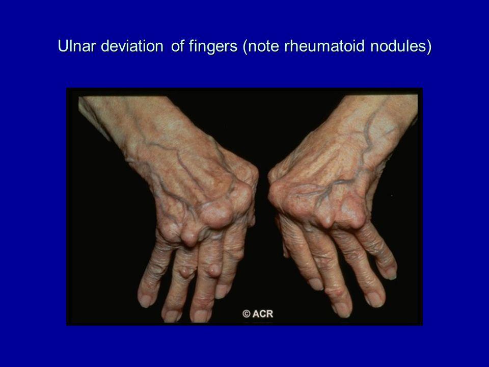 Ulnar deviation of fingers (note rheumatoid nodules)