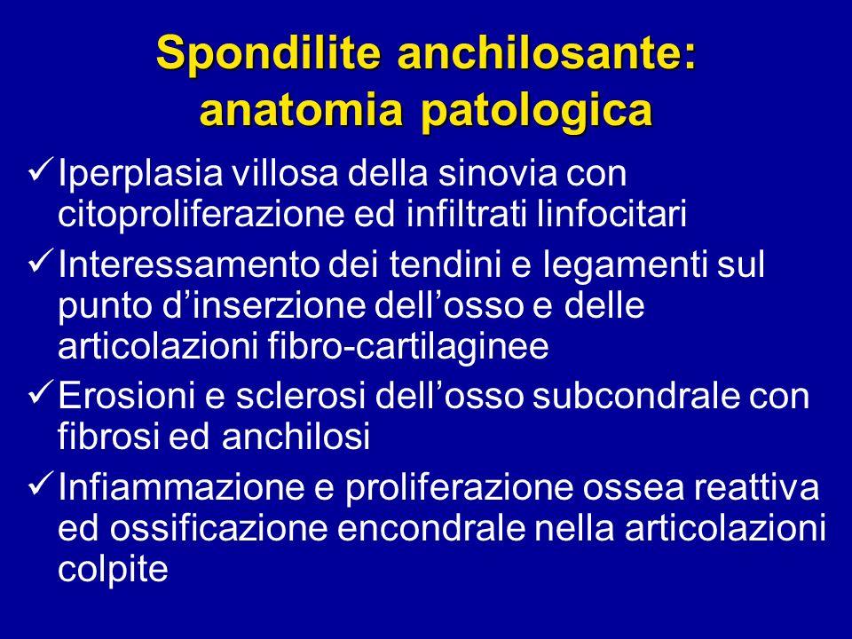 Spondilite anchilosante: anatomia patologica Iperplasia villosa della sinovia con citoproliferazione ed infiltrati linfocitari Interessamento dei tend