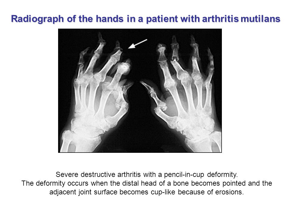 Severe destructive arthritis with a pencil-in-cup deformity. The deformity occurs when the distal head of a bone becomes pointed and the adjacent join