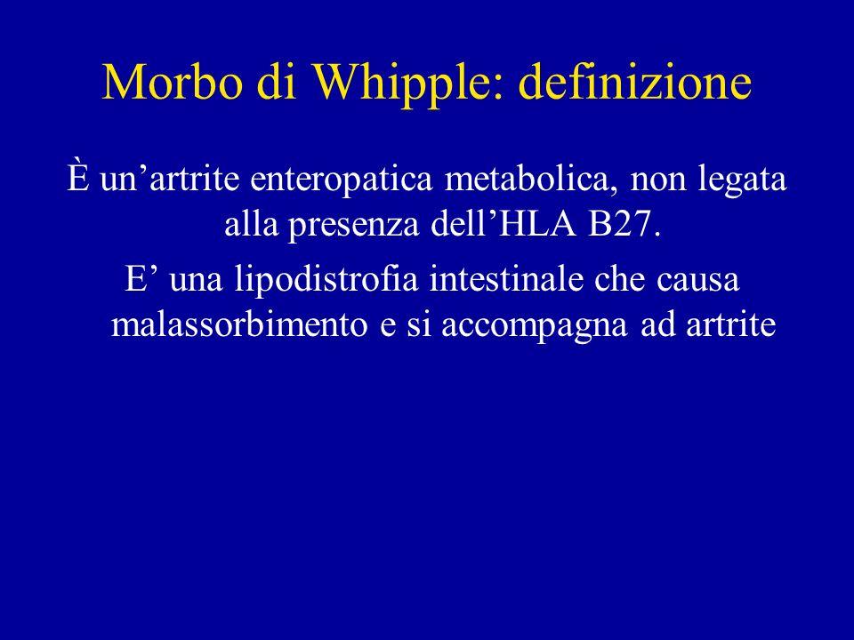 Morbo di Whipple: definizione È unartrite enteropatica metabolica, non legata alla presenza dellHLA B27. E una lipodistrofia intestinale che causa mal