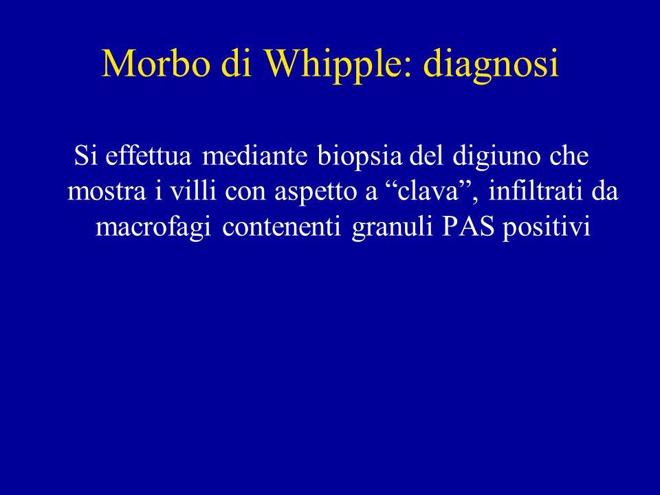 Morbo di Whipple: diagnosi Si effettua mediante biopsia del digiuno che mostra i villi con aspetto a clava, infiltrati da macrofagi contenenti granuli