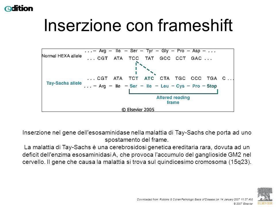 Inserzione nel gene dell'esosaminidase nella malattia di Tay-Sachs che porta ad uno spostamento del frame. La malattia di Tay-Sachs è una cerebrosidos