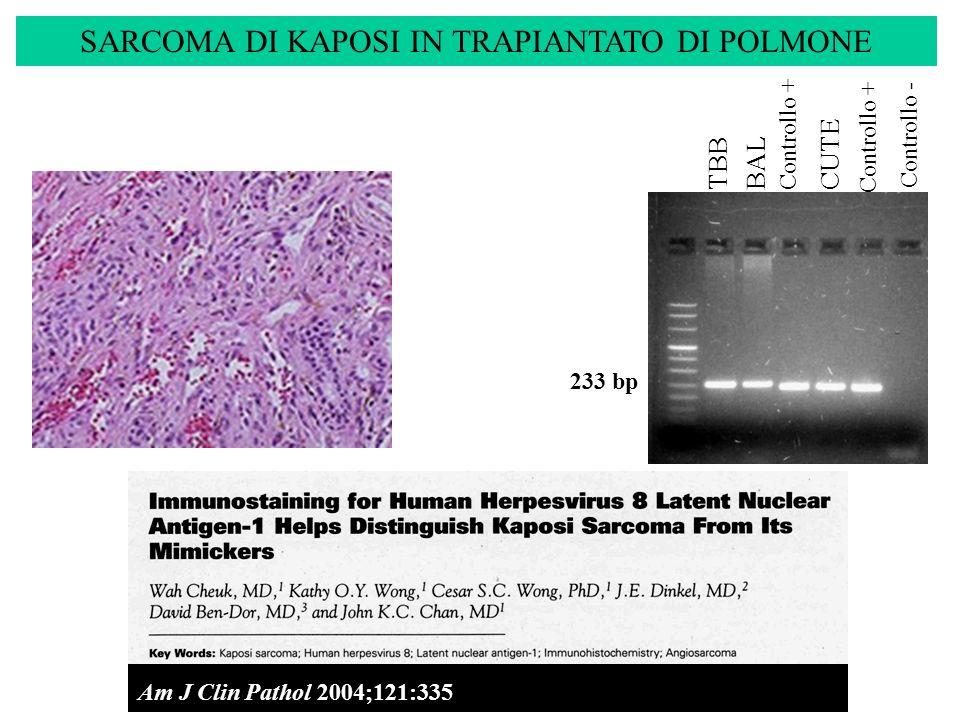 SARCOMA DI KAPOSI IN TRAPIANTATO DI POLMONE 233 bp TBBBAL Controllo + Controllo - Am J Clin Pathol 2004;121:335- 342 Controllo + CUTE