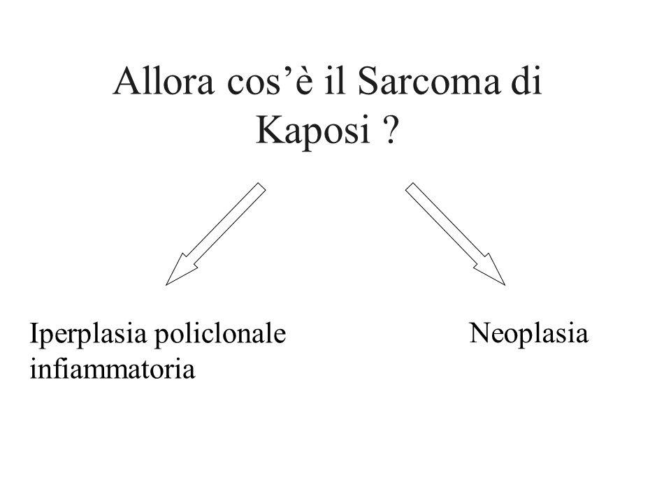 Allora cosè il Sarcoma di Kaposi ? Iperplasia policlonale infiammatoria Neoplasia