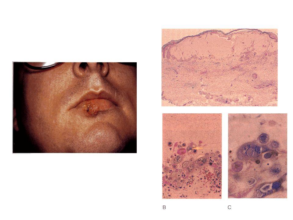 E possibile che il Sarcoma di Kaposi inizi come iperplasia policlonale infiammatoria e successivamente si selezioni un clone cellulare con caratteristiche neoplastiche Judde JG et al J Natl Cancer Inst 2000