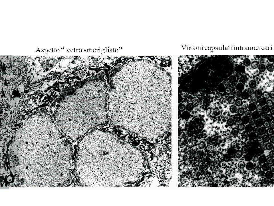Aspetto vetro smerigliato Virioni capsulati intranucleari
