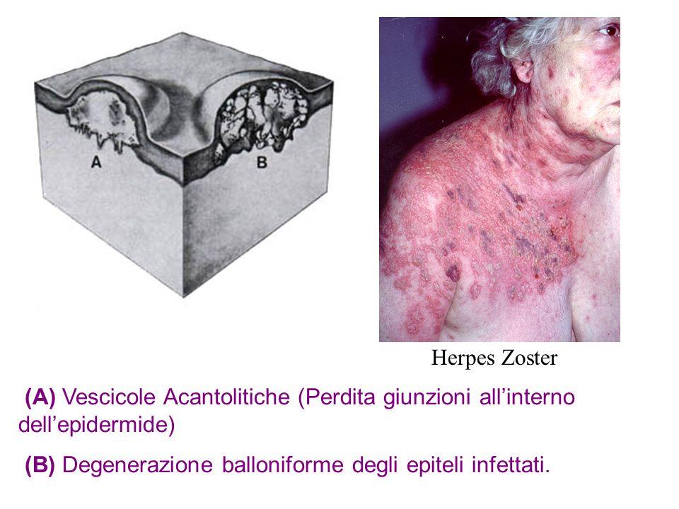 (A) Vescicole Acantolitiche (Perdita giunzioni allinterno dellepidermide) (B) Degenerazione balloniforme degli epiteli infettati. Herpes Zoster