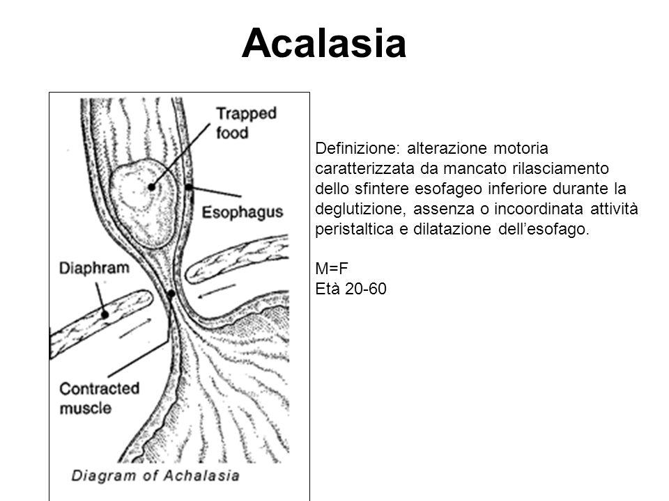 Acalasia Lalterazione della peristalsi è conseguente ad un danno della innervazione parasimpatica dellesofago, con degenerazione o completa assenza delle cellule gangliari a livello del corpo dellesofago che sono invece normali a livello del SEI.