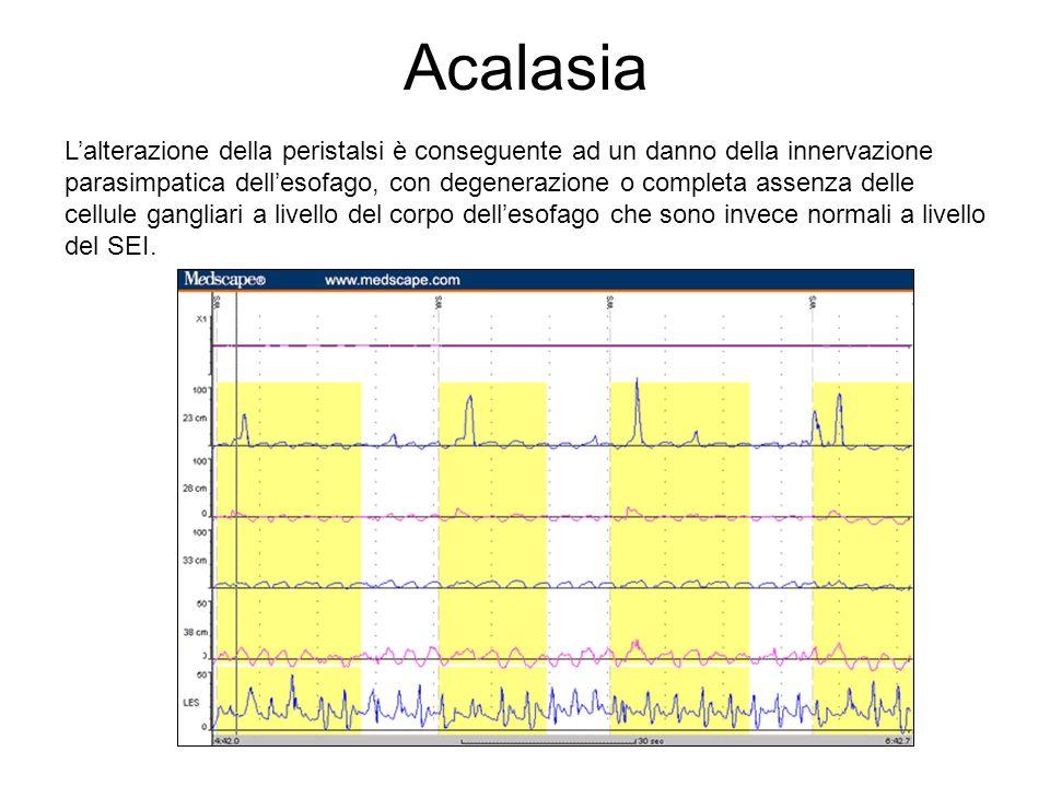 Alterazioni della motilità Amiloidosi Depositi di amiloide in una arteriola della lamina propria (Rosso Congo)