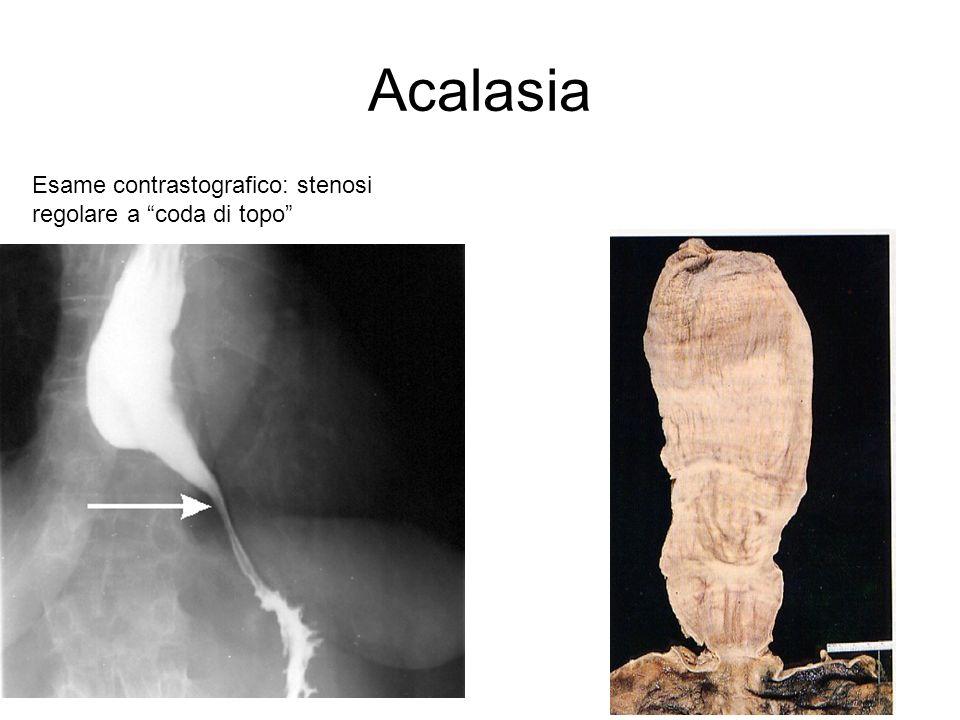 Alterazioni della motilità Acalasia Patogenesi: mancanza/perdita di cellule gangliari del plesso mienterico dellesofago Aperistalsi Mancato rilassamento dello sfintere esofageo inferiore (LES) Aumento della pressione intraesofagea Ristagno di cibo Esofagite