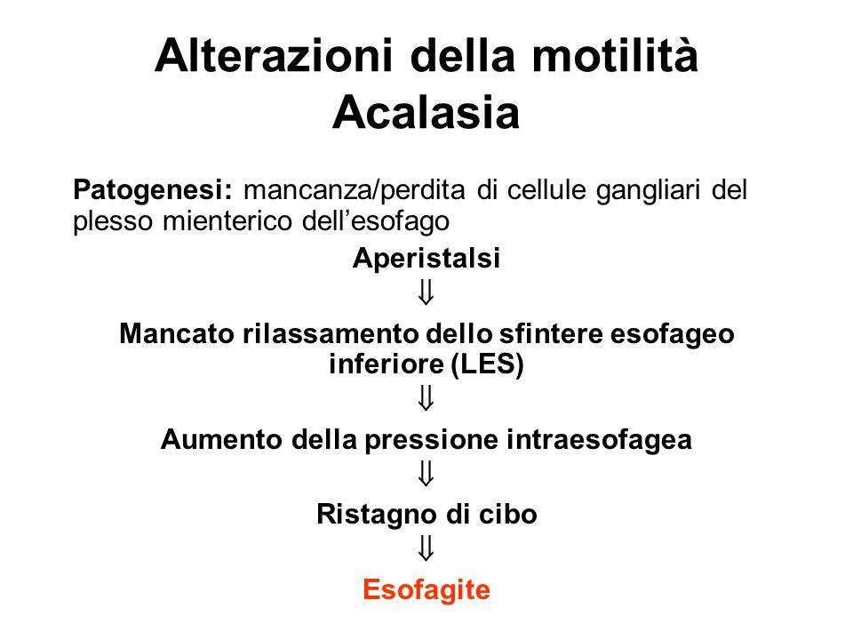 Esame bioptico: Aspetto normale (forme iniziali di acalasia) Lesioni indistinguibili da quelle riscontrate in corso di RGE Alterazioni della motilità Acalasia