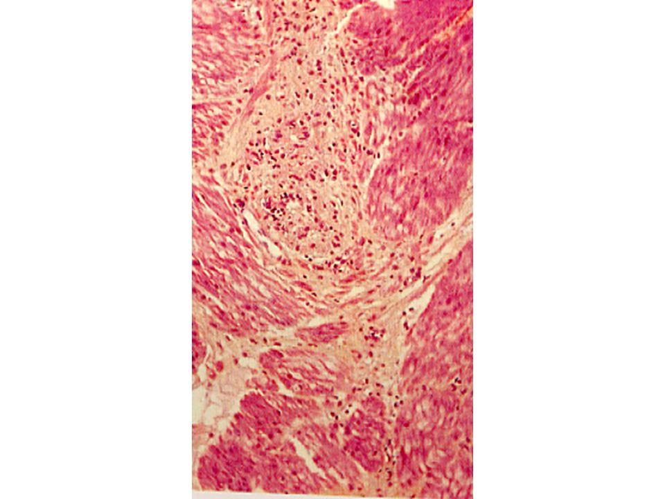 Sclerodermia Fibrosi della muscolaris mucosae Ispessimento delle arteriole