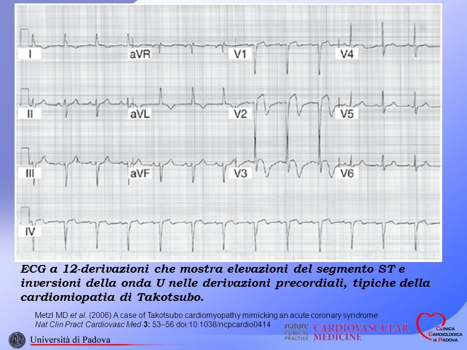 Metzl MD et al. (2006) A case of Takotsubo cardiomyopathy mimicking an acute coronary syndrome Nat Clin Pract Cardiovasc Med 3: 53–56 doi:10.1038/ncpc