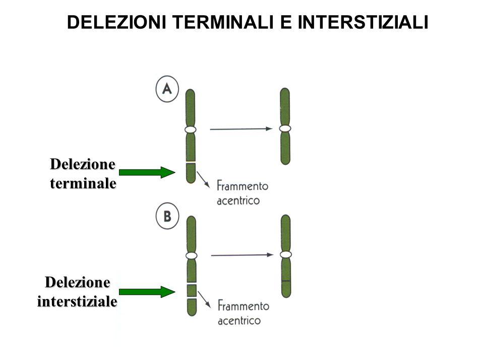 DELEZIONI TERMINALI E INTERSTIZIALI Delezioneterminale Delezioneinterstiziale