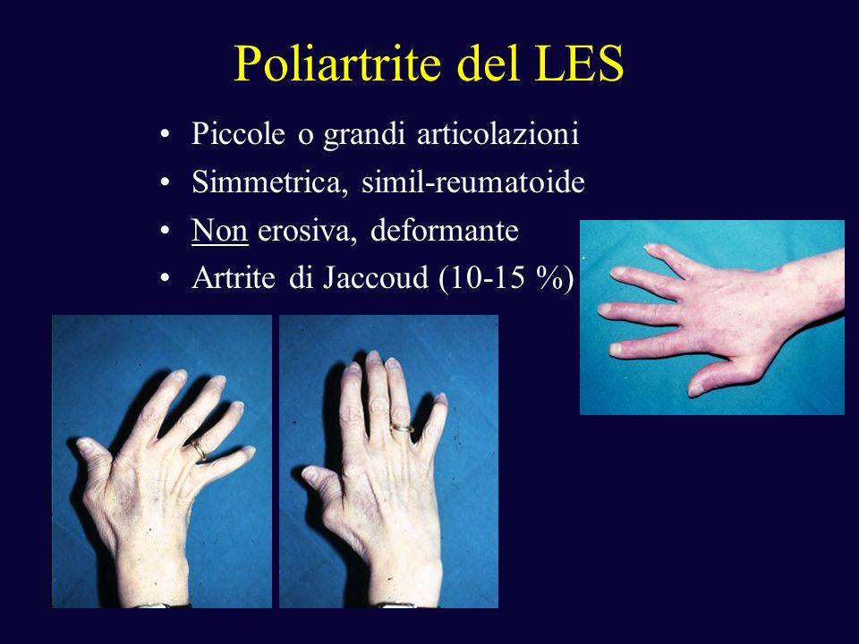 Poliartrite del LES Piccole o grandi articolazioni Simmetrica, simil-reumatoide Non erosiva, deformante Artrite di Jaccoud (10-15 %)
