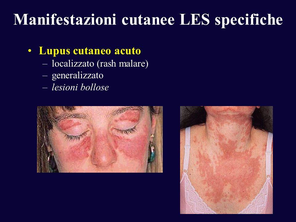 Manifestazioni cutanee LES specifiche Lupus cutaneo acuto –localizzato (rash malare) –generalizzato –lesioni bollose