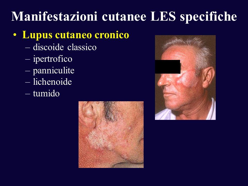 Manifestazioni cutanee LES specifiche Lupus cutaneo cronico –discoide classico –ipertrofico –panniculite –lichenoide –tumido
