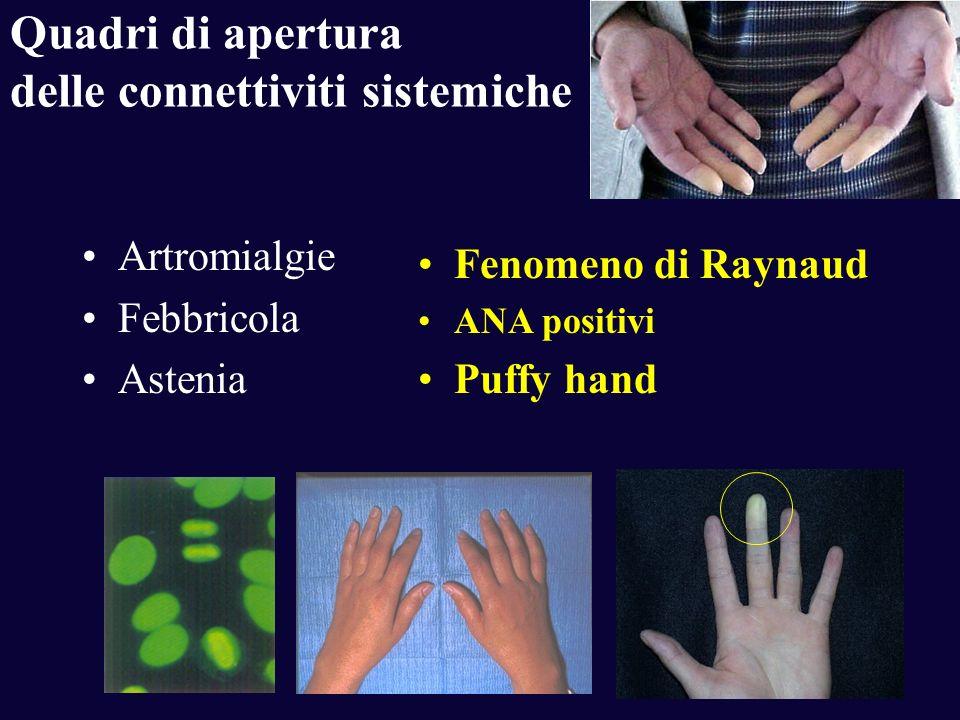 Quadri di apertura delle connettiviti sistemiche Artromialgie Febbricola Astenia Fenomeno di Raynaud ANA positivi Puffy hand