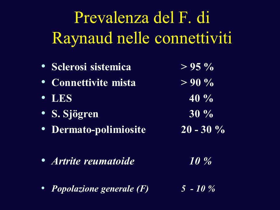 Prevalenza del F. di Raynaud nelle connettiviti Sclerosi sistemica> 95 % Connettivite mista> 90 % LES 40 % S. Sjögren 30 % Dermato-polimiosite20 - 30
