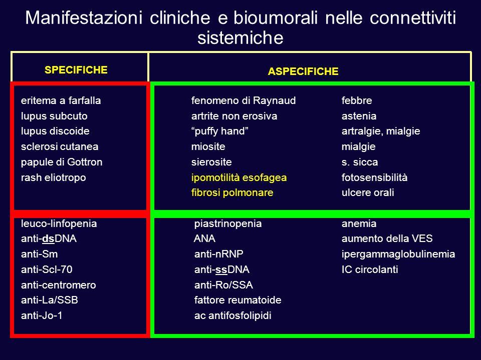 Manifestazioni cliniche e bioumorali nelle connettiviti sistemiche eritema a farfallafenomeno di Raynaudfebbre lupus subcutoartrite non erosivaastenia