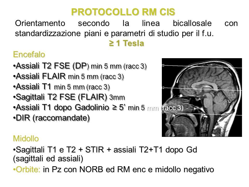 PROTOCOLLO RM CIS Assiali T2 FSE (DP ) min 5 mm (racc 3) Assiali FLAIR min 5 mm (racc 3) Assiali T1 min 5 mm (racc 3) Sagittali T2 FSE (FLAIR) 3mm Ass