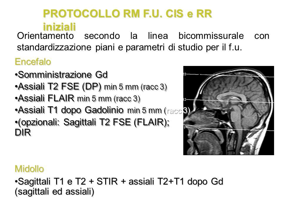 PROTOCOLLO RM F.U. CIS e RR iniziali Assiali T2 FSE (DP) min 5 mm (racc 3) Assiali FLAIR min 5 mm (racc 3) Somministrazione Gd Assiali T1 dopo Gadolin