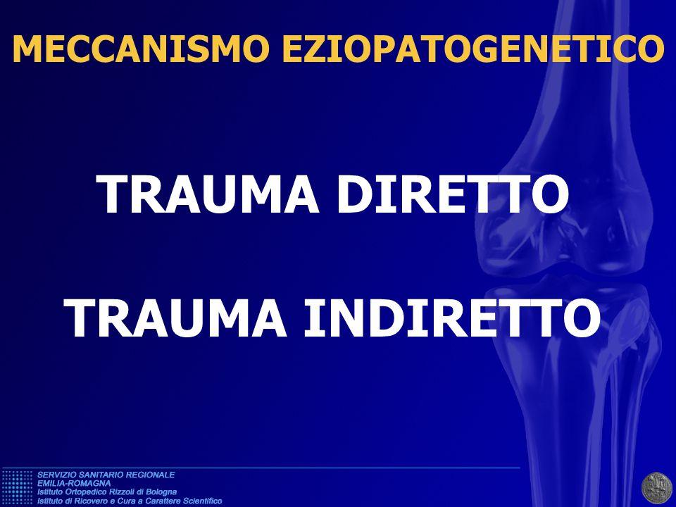 DISTACCO TENDINE RIFLESSO R.F.