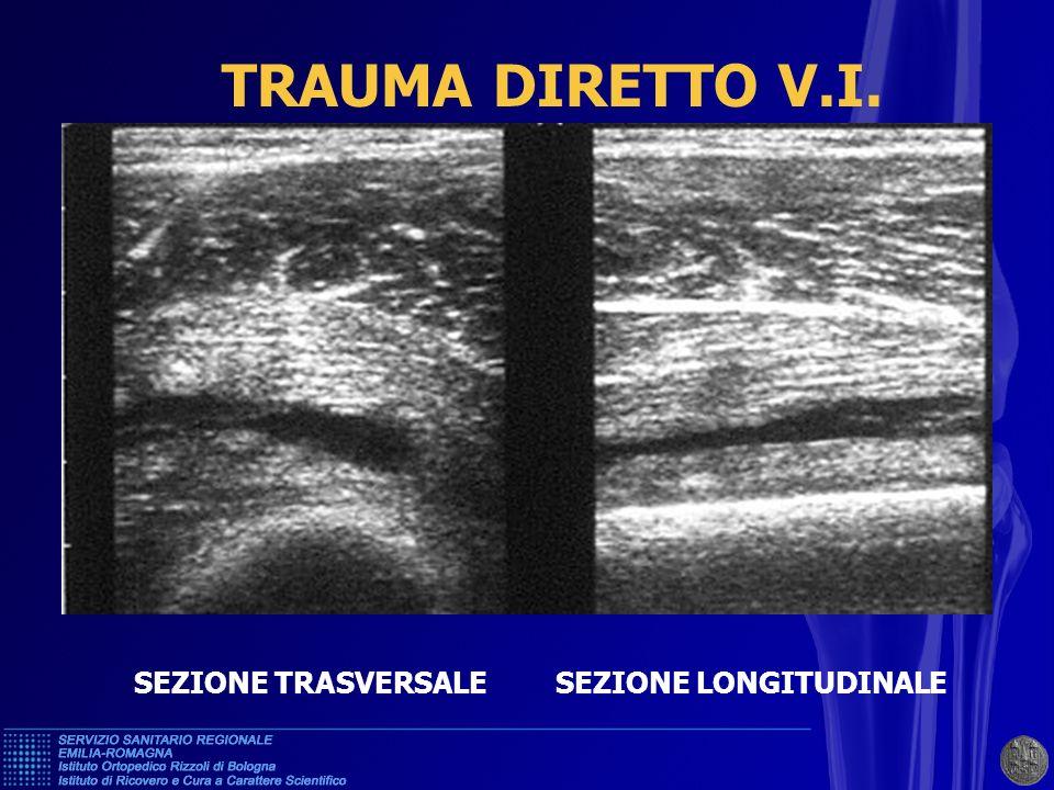 CLASSIFICAZIONE DEGLI INFORTUNI MUSCOLARI DA TRAUMA INDIRETTO 1.