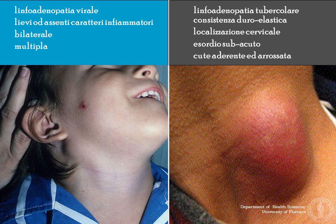 linfoadenopatia virale lievi od assenti caratteri infiammatori bilaterale multipla linfoadenopatia tubercolare consistenza duro-elastica localizzazion
