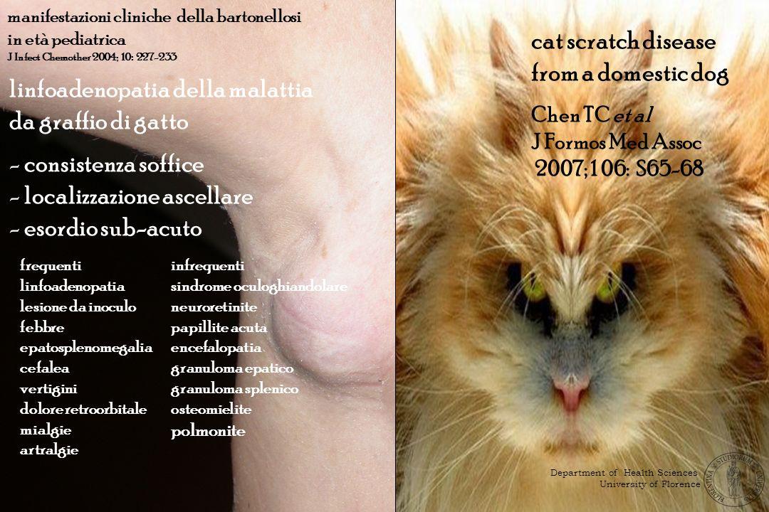 linfoadenopatia della malattia da graffio di gatto - consistenza soffice - localizzazione ascellare - esordio sub-acuto frequenti linfoadenopatia lesi
