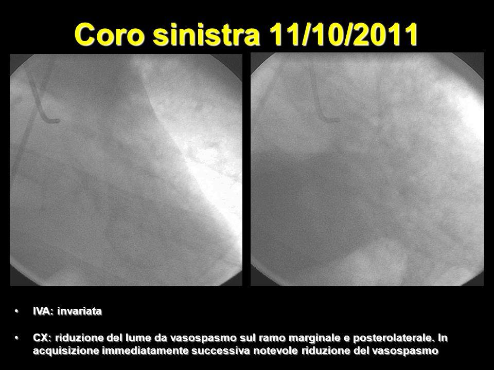 Coro sinistra 11/10/2011 IVA: invariataIVA: invariata CX: riduzione del lume da vasospasmo sul ramo marginale e posterolaterale.