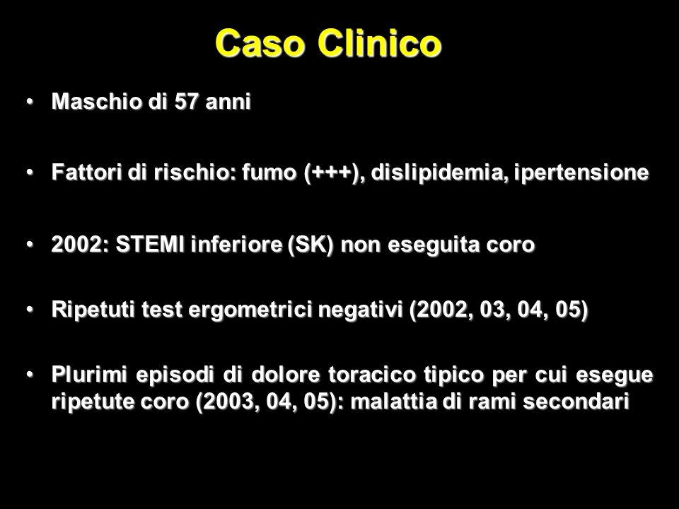 Caso Clinico Maschio di 57 anniMaschio di 57 anni Fattori di rischio: fumo (+++), dislipidemia, ipertensioneFattori di rischio: fumo (+++), dislipidemia, ipertensione 2002: STEMI inferiore (SK) non eseguita coro2002: STEMI inferiore (SK) non eseguita coro Ripetuti test ergometrici negativi (2002, 03, 04, 05)Ripetuti test ergometrici negativi (2002, 03, 04, 05) Plurimi episodi di dolore toracico tipico per cui esegue ripetute coro (2003, 04, 05): malattia di rami secondariPlurimi episodi di dolore toracico tipico per cui esegue ripetute coro (2003, 04, 05): malattia di rami secondari