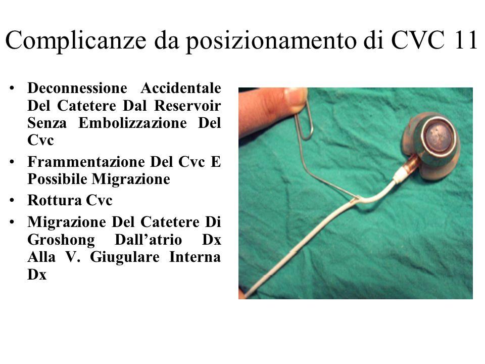 Complicanze da posizionamento di CVC 11 Deconnessione Accidentale Del Catetere Dal Reservoir Senza Embolizzazione Del Cvc Frammentazione Del Cvc E Pos
