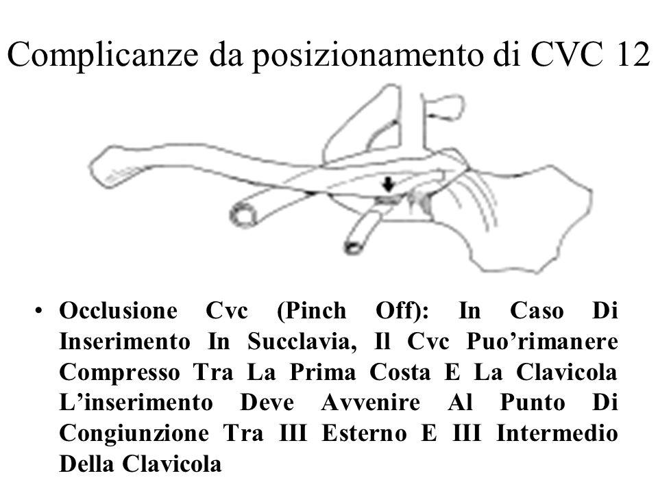 Complicanze da posizionamento di CVC 12 Occlusione Cvc (Pinch Off): In Caso Di Inserimento In Succlavia, Il Cvc Puorimanere Compresso Tra La Prima Cos