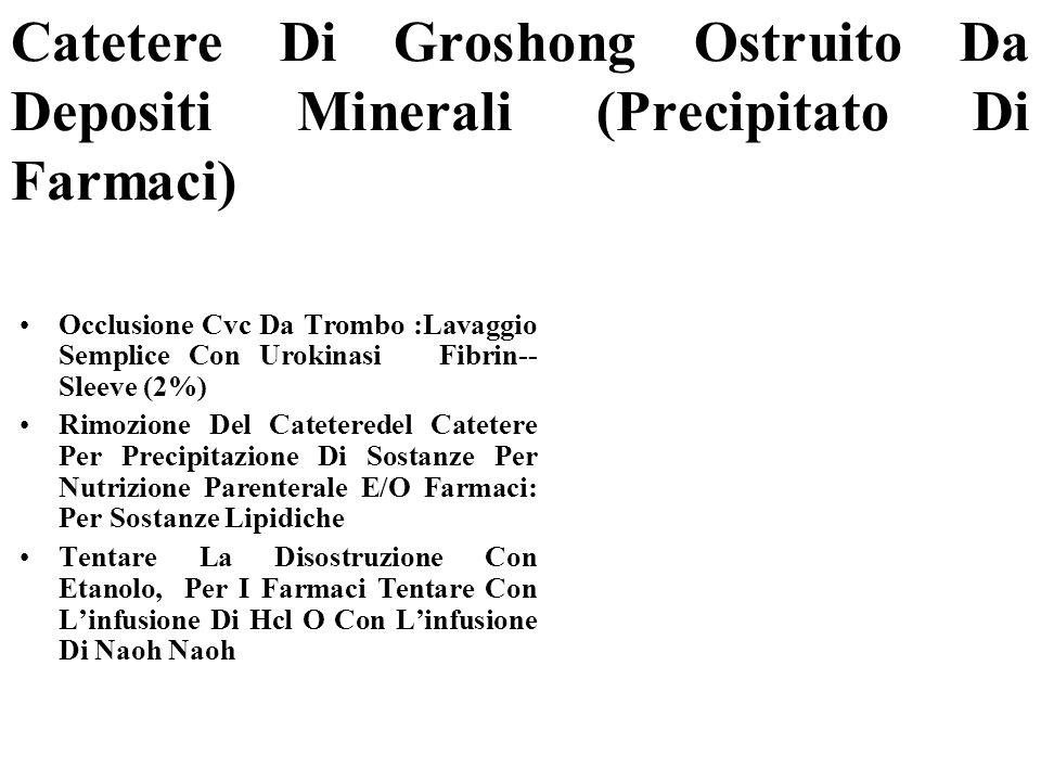 Catetere Di Groshong Ostruito Da Depositi Minerali (Precipitato Di Farmaci) Occlusione Cvc Da Trombo :Lavaggio Semplice Con Urokinasi Fibrin-- Sleeve