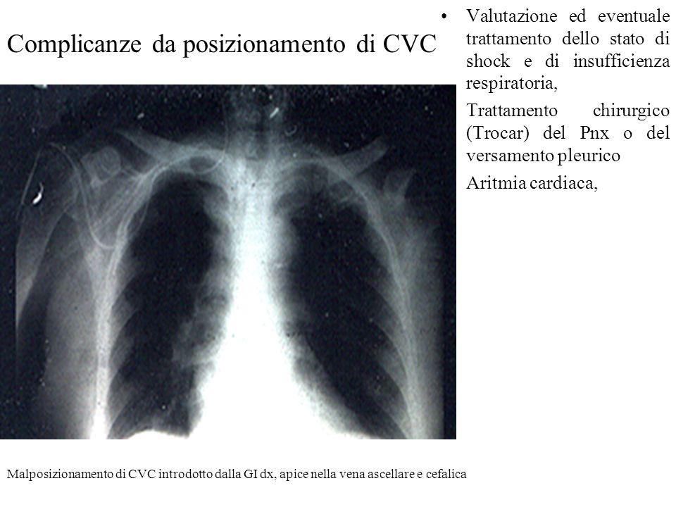 Complicanze da posizionamento di CVC Valutazione ed eventuale trattamento dello stato di shock e di insufficienza respiratoria, Trattamento chirurgico