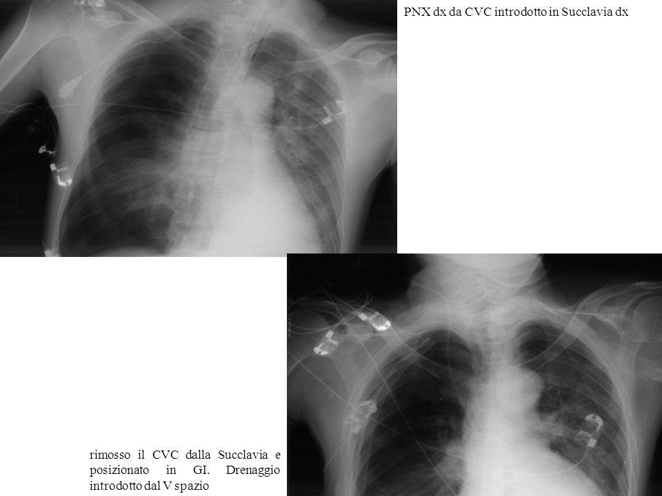 PNX dx da CVC introdotto in Succlavia dx rimosso il CVC dalla Succlavia e posizionato in GI. Drenaggio introdotto dal V spazio