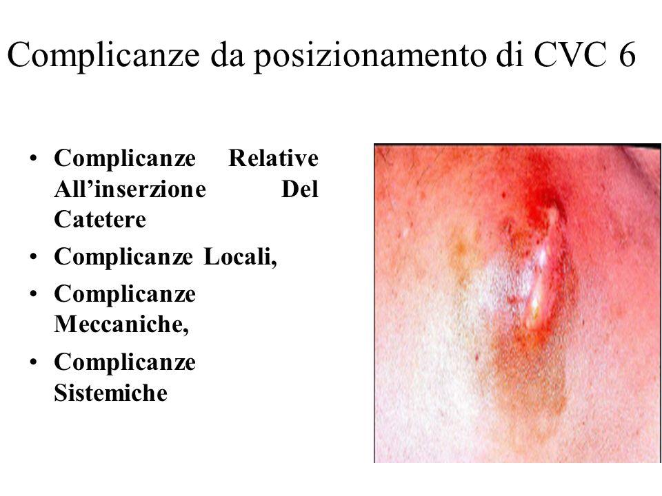 Complicanze da posizionamento di CVC 6 Complicanze Relative Allinserzione Del Catetere Complicanze Locali, Complicanze Meccaniche, Complicanze Sistemi